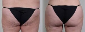 Patient 2 Brazilian ButtLift Before and After - Back View