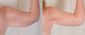 Patient 1 Liposuction Before and After Right Arm Back View