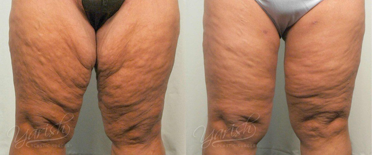 Patient 3 Thigh Lift Before and After Front View