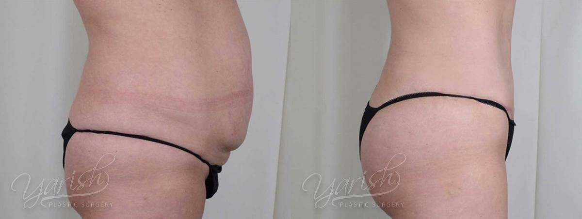 Patient 2 Brazilian ButtLift Before and After - Side View