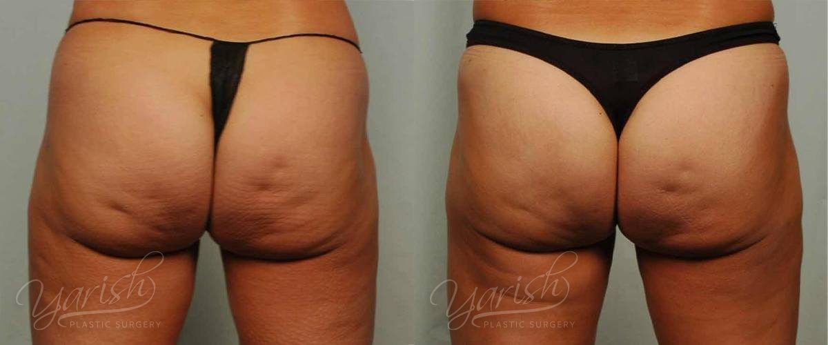 Patient 4 Cellulaze Before and After Back View