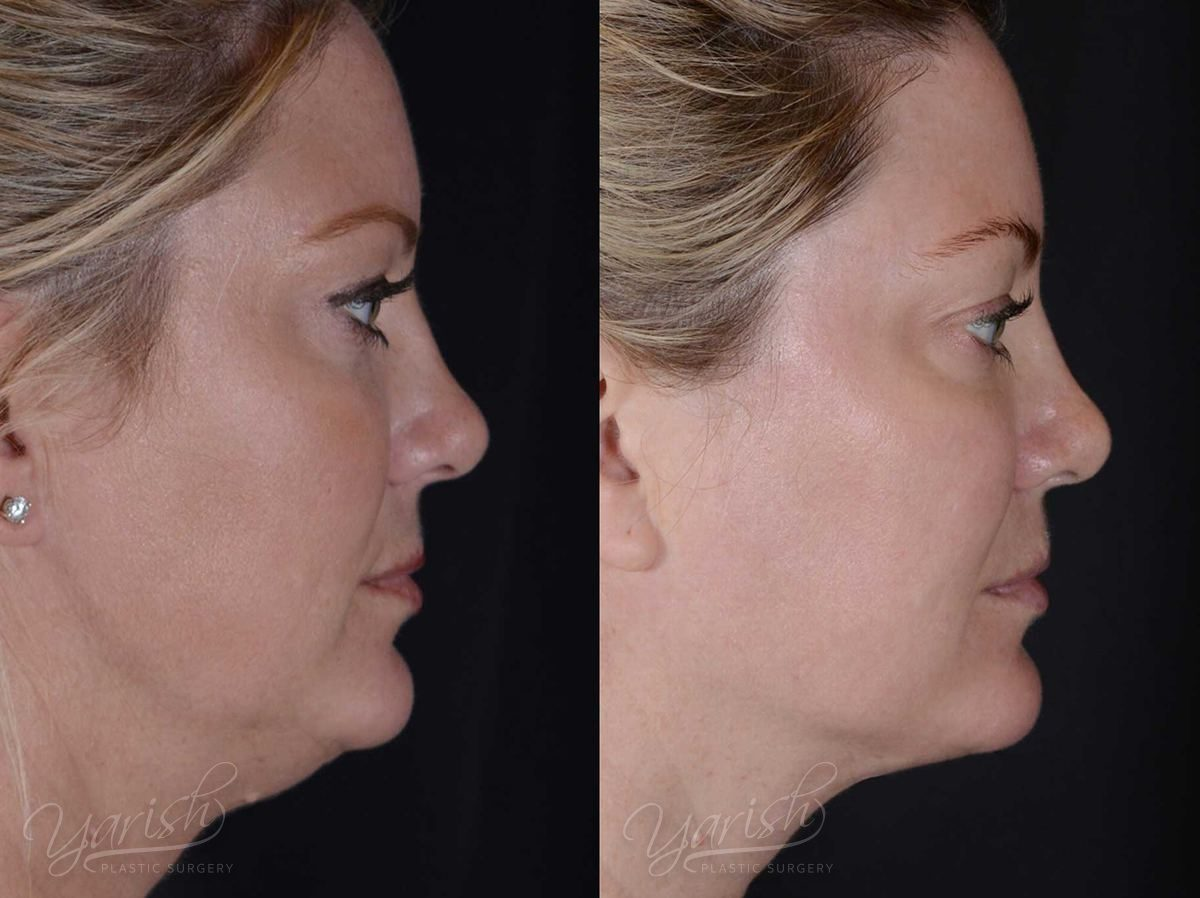 Patient 3 Facetite Before and After Right Side View