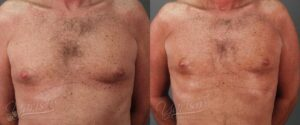 Patient 1 Male Liposuction Before and After Chest View