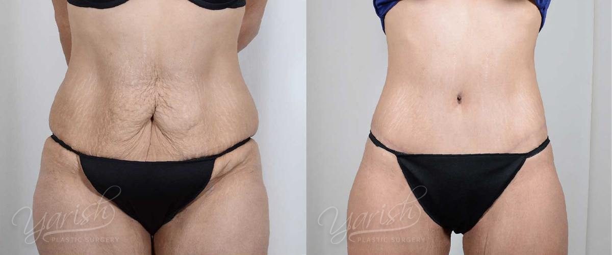 Patient 2 Tummy Tuck Before and After Front View