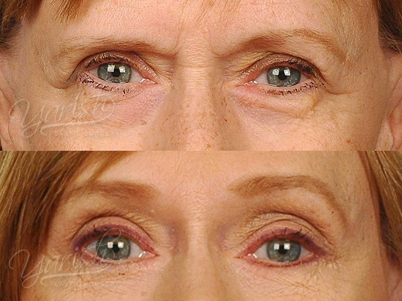 Patient 4 Blepharoplasty Before and After Front View