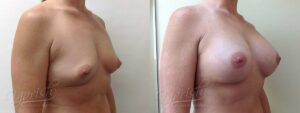 Patient 2 Breast Augmentation Before and After Right Oblique View
