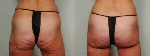 Patient 3 Brazilian ButtLift Before and After - Back View