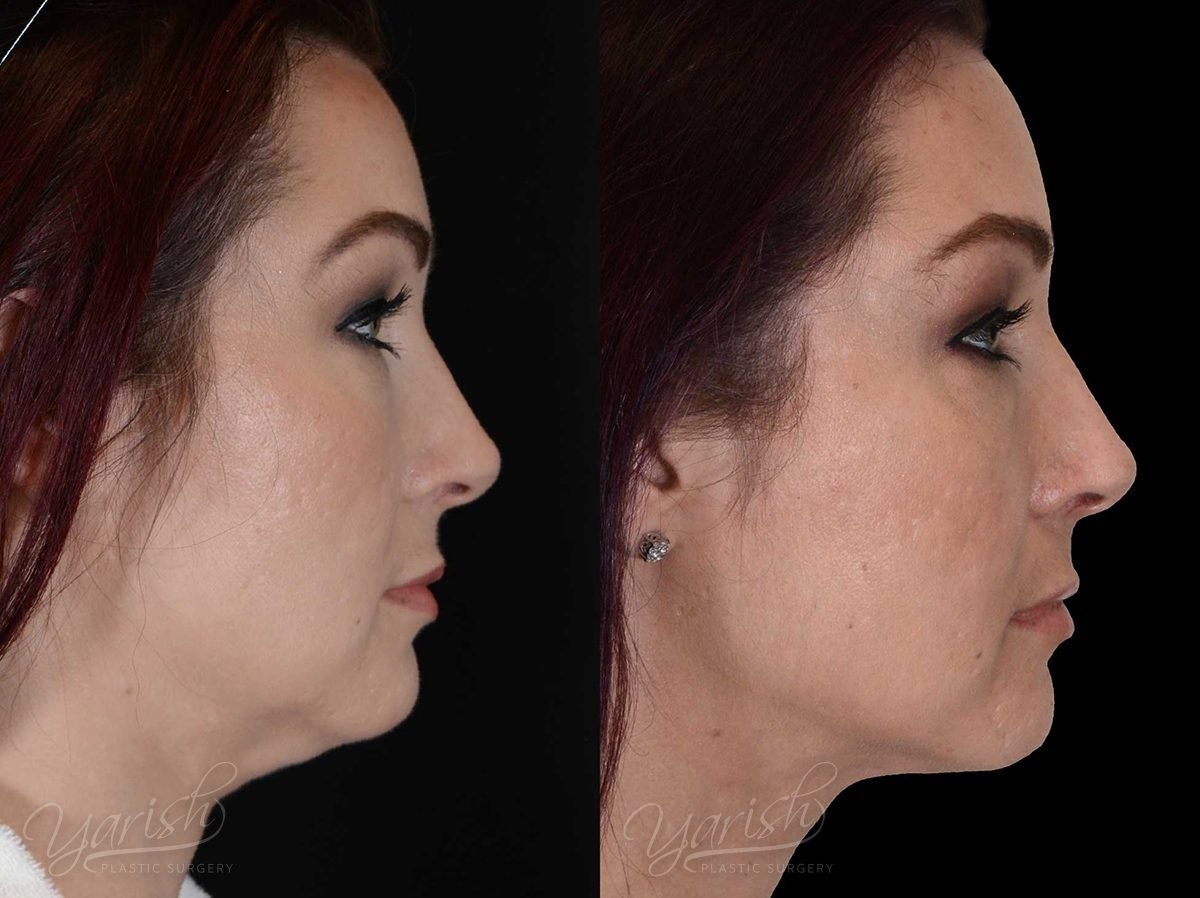 Patient 4 Facetite Before and After Right Side View