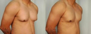 Patient 2 Gynecomastia Before and After Right Oblique View