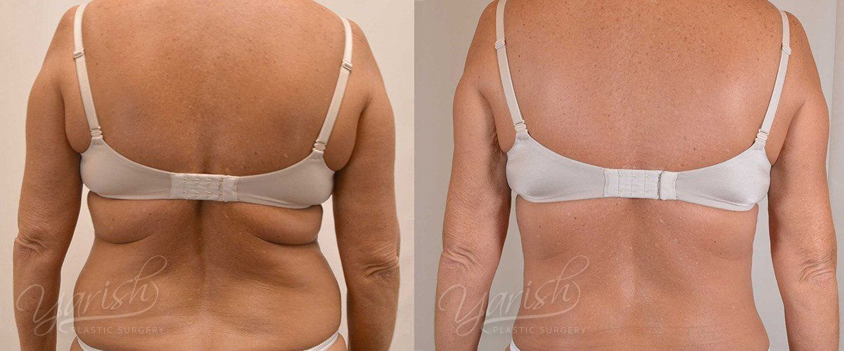 Patient 2 Liposuction Before and After Back View