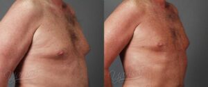 Patient 1 Male Liposuction Before and After Chest Right Oblique View