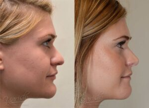 Patient 4 Rhinoplasty Before and After Right Side View