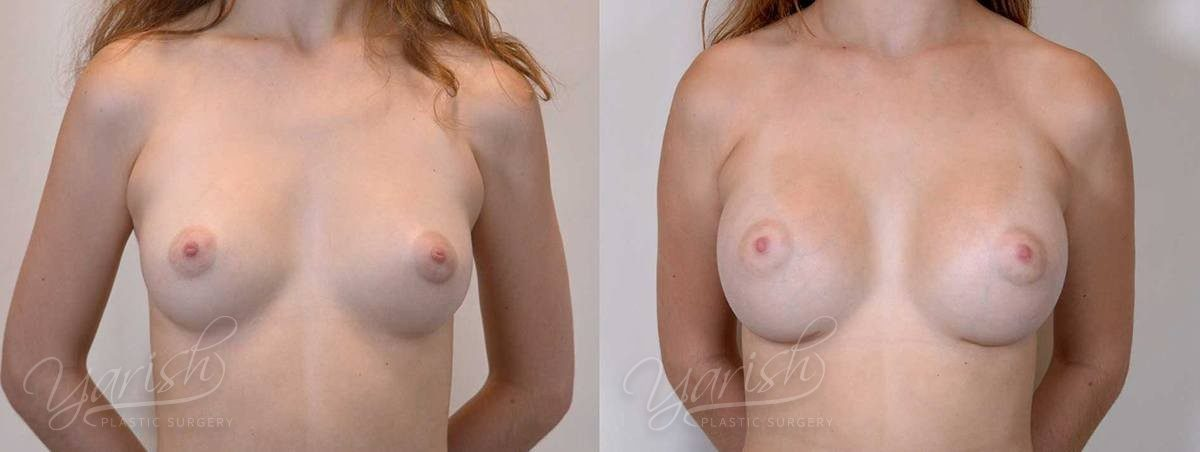 Patient 3 Breast Augmentation Before and After Front View
