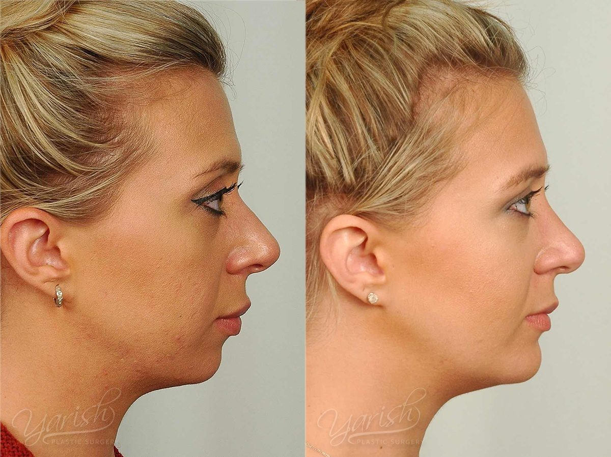 Patient 5 Facial Implants Before and After Right Side View
