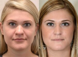 Patient 4 Rhinoplasty Before and After Front View