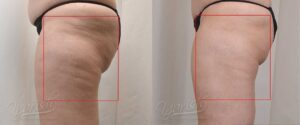 Patient 1 Cellulaze Before and After Left Side View