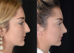 Patient 3 Rhinoplasty Before and After Right Side View