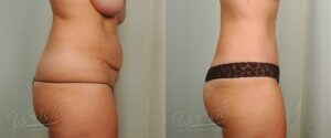Patient 3 Tummy Tuck Before and After Right Side View