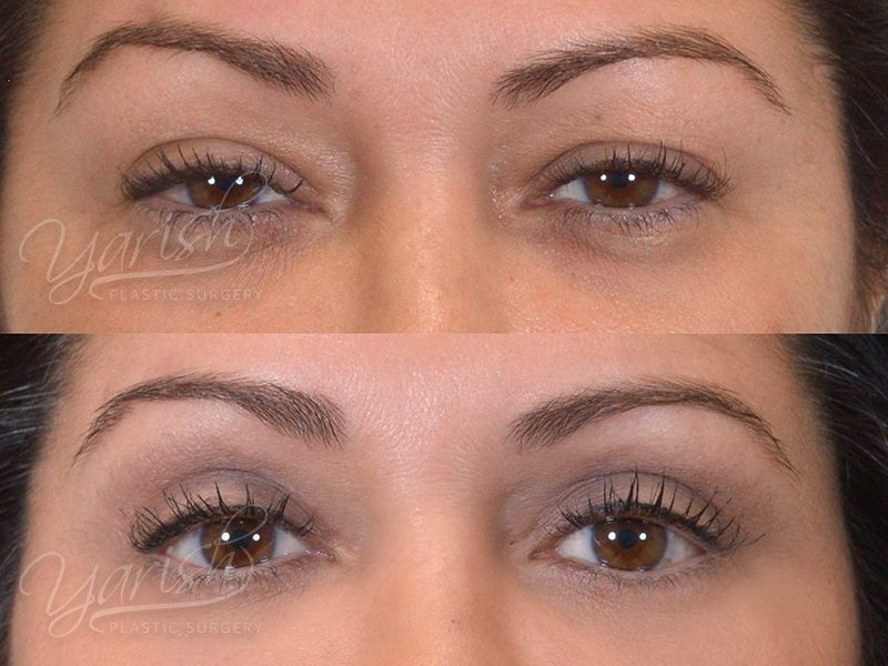 Patient 7 Blepharoplasty Before and After Front View