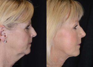 Patient 4 Face Lift and Neck Lift Before and After Right Side View