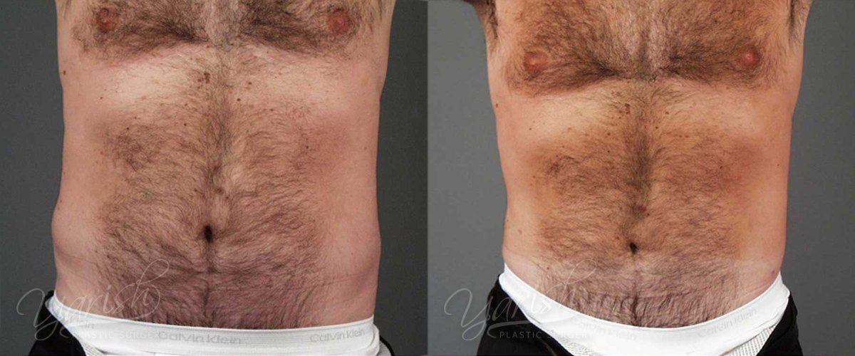 Patient 3 Male Liposuction Before and After Chest Front View