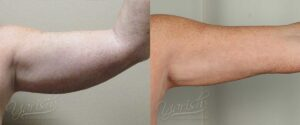 Patient 5 Liposuction Before and After Left Arm Front View