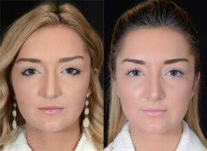 Patient 3 Rhinoplasty Before and After Front View