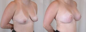 Patient 1 Breast Augmentation with Mastopexy Before and After Right Oblique View