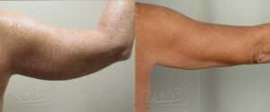 Patient 5 Liposuction Before and After Right Arm Back View
