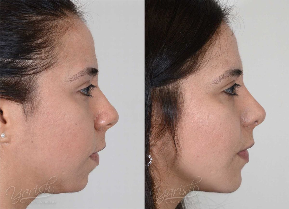 Patient 2 Rhinoplasty Before and After Right Side View