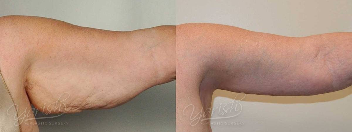 Patient 5 Brachioplasty Before and After Photo - 3 Months After