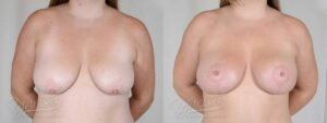 Patient 7 Breast Augmentation with Mastopexy Before and After Front View