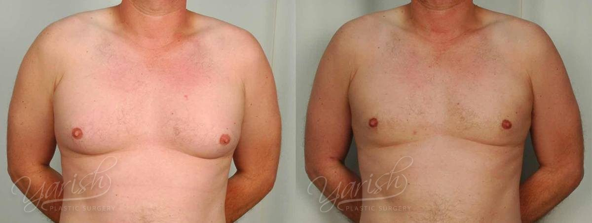 Patient 5 Gynecomastia Before and After Front View