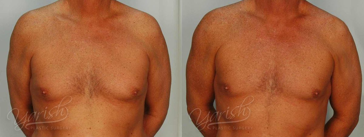 Patient 6 Gynecomastia Before and After Front View