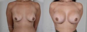 Patient 7 Breast Augmentation Before and After Front View