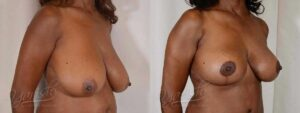Patient 11 Breast Lift Before and After Right Oblique View