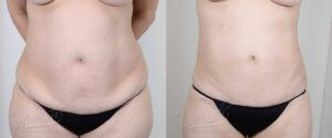 Patient 8 Liposuction Before and After Front Torso View