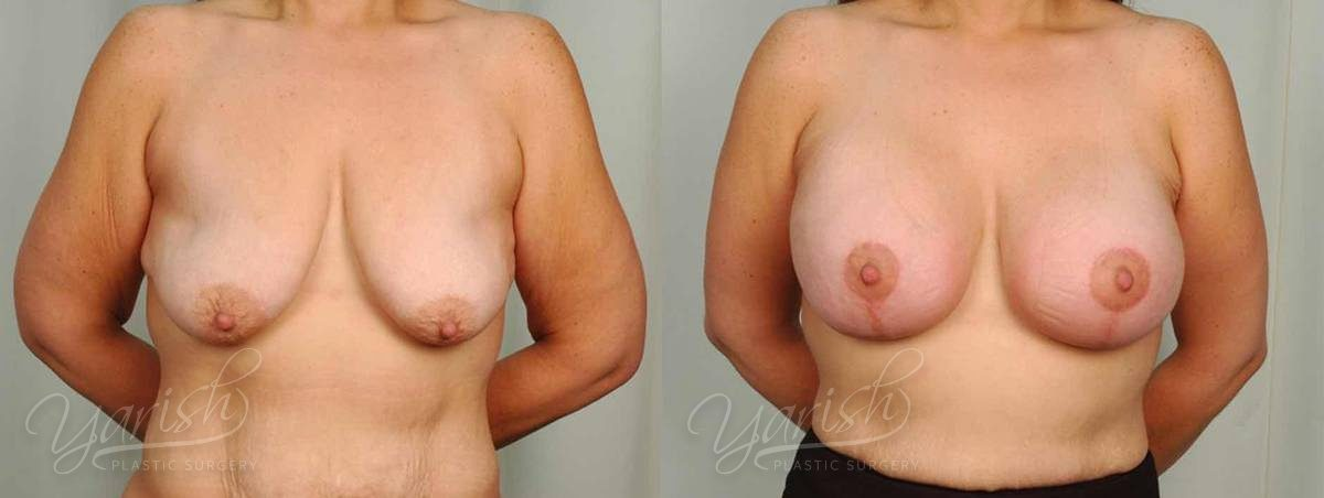Patient 9 Breast Augmentation with Mastopexy Before and After Front View