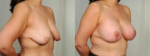Patient 9 Breast Augmentation with Mastopexy Before and After Right Oblique View