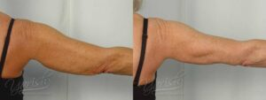 Patient 9 Brachioplasty Before and After Photo - 4 Months After