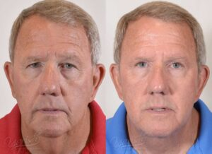 Patient 10 Face Lift and Neck Lift Before and After Front View