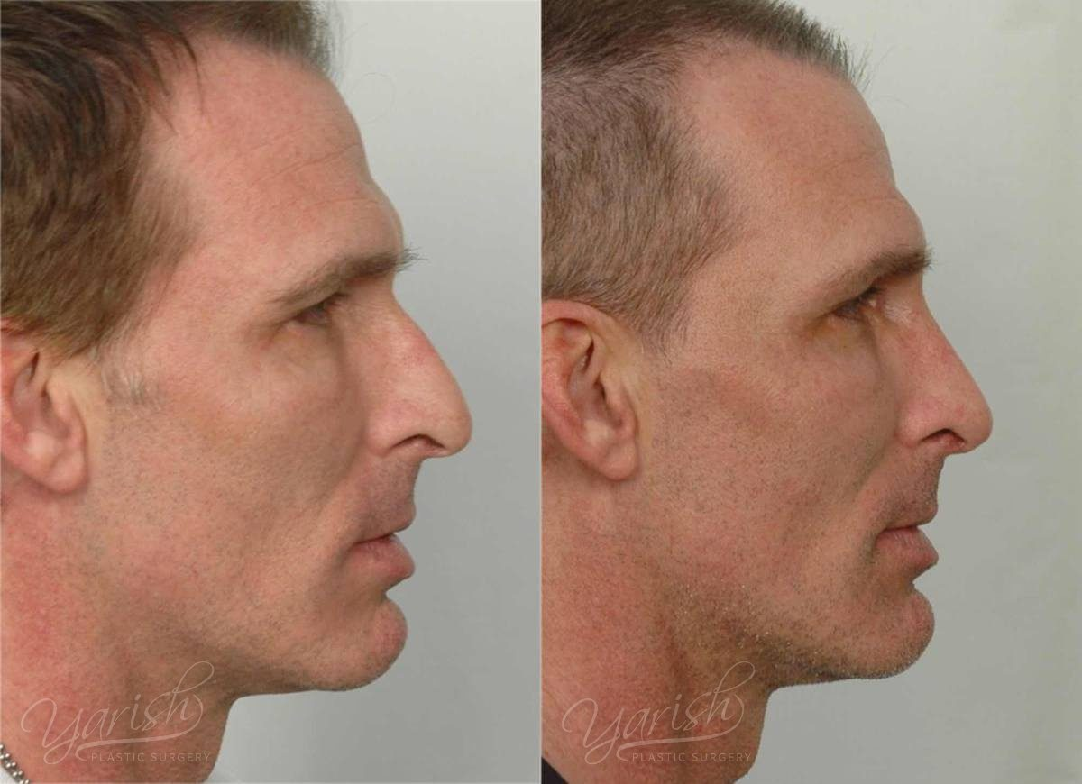 Patient 14 Rhinoplasty Before and After Right Side View