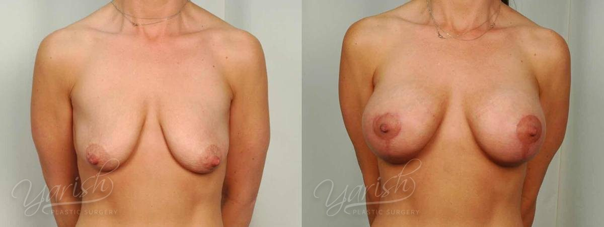 Patient 10 Breast Augmentation with Mastopexy Before and After Front View