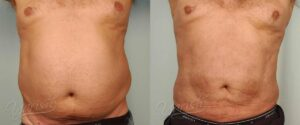 Patient 9 Male Liposuction Before and After Front View