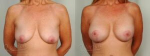 Patient 11 Breast Augmentation with Mastopexy Before and After Front View