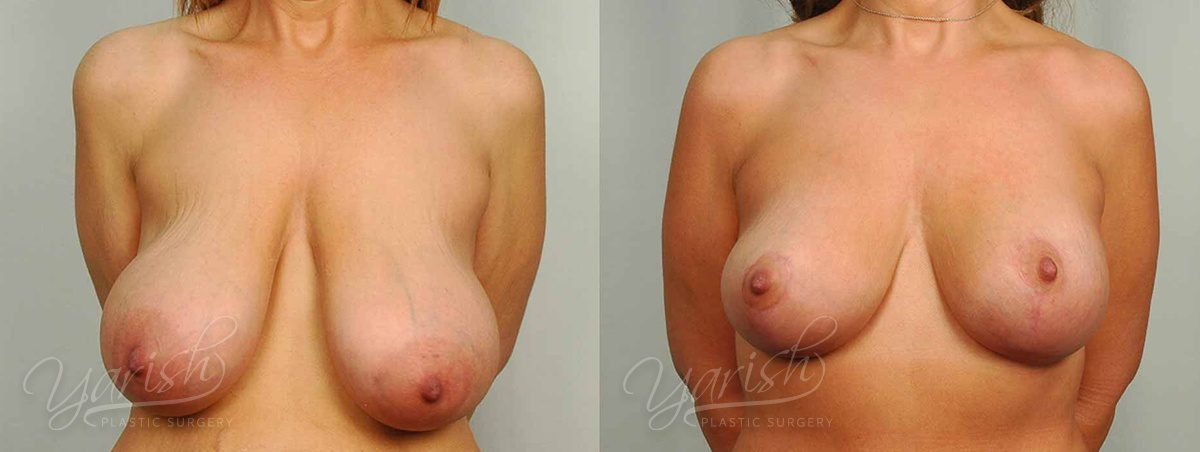 Patient 5 Breast Reduction Before and After Front View