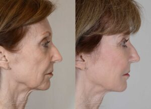 Patient 12 Face Lift and Neck Lift Before and After Right Side View
