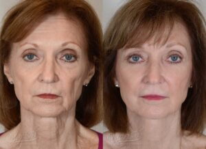 Patient 12 Face Lift and Neck Lift Before and After Front View