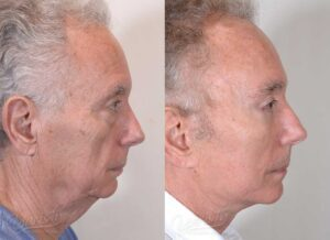 Patient 14 Face Lift and Neck Lift Before and After Right Side View