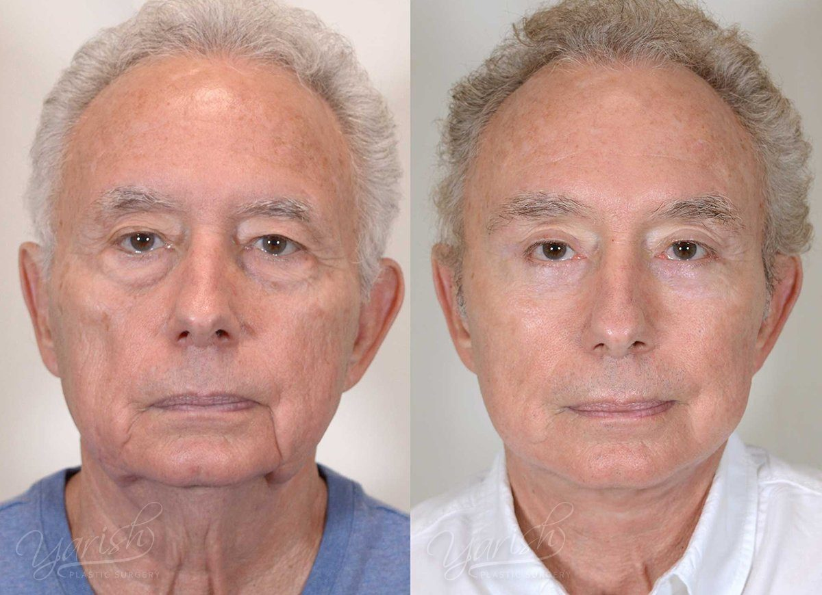Patient 14 Face Lift and Neck Lift Before and After Front View